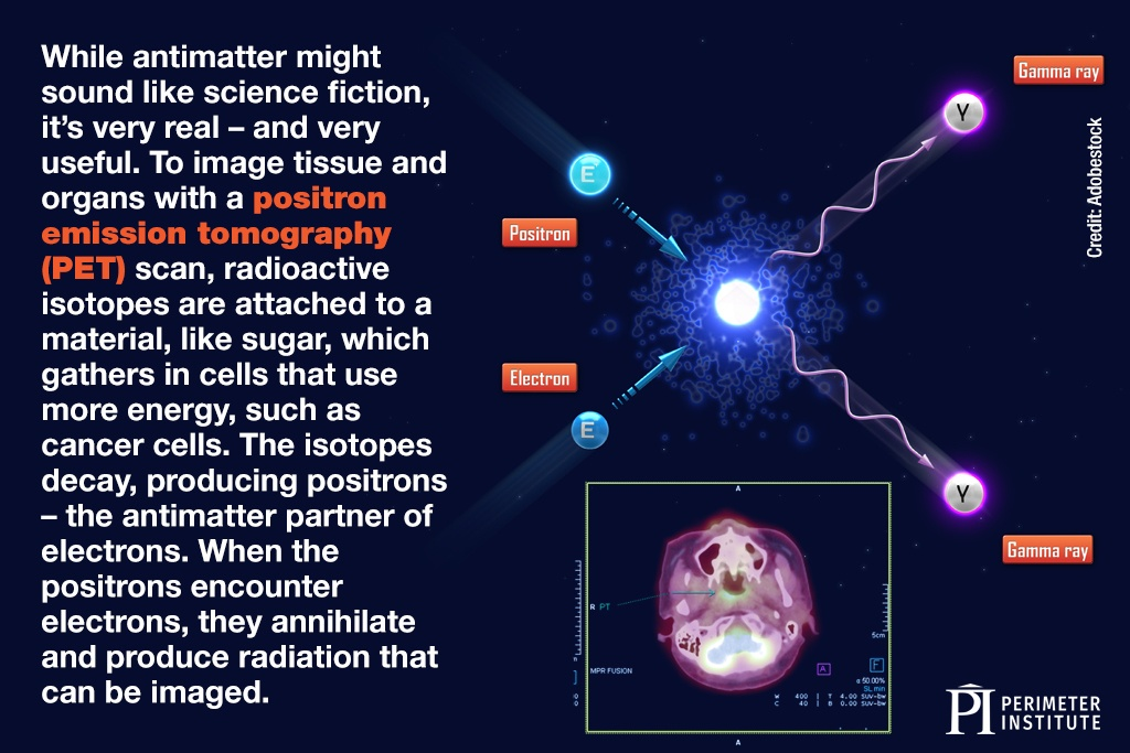While antimatter might sound like science fiction, it's very real – and very useful. To image tissue and organs with a positron emission tomography (PET) scan, radioactive isotopes are attached to a material, like sugar, which gathers in cells that use more energy, such as cancer cells. The isotopes decay, producing positrons – the antimatter partner of electrons. When the positrons encounter electrons, they annihilate and produce radiation that can be imaged.